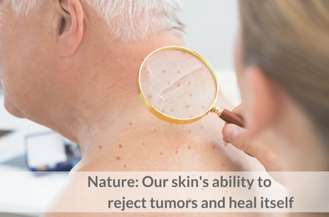 Nature: Our skin's ability to reject tumors and heal itself